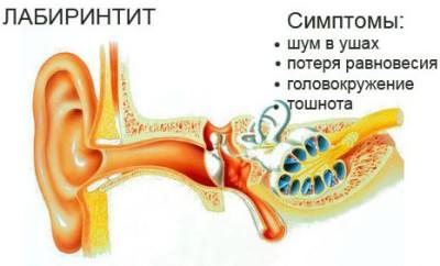 Лекарство от воспаления уха лабиринтита