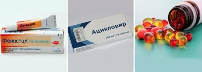 Препараты для лечения герпеса в домашних условиях