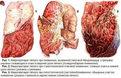 Пневмония без температуры (с кашлем)