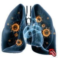 Воспаление легких без кашля