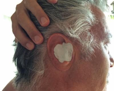 Можно ли греть ухо при гнойном отите
