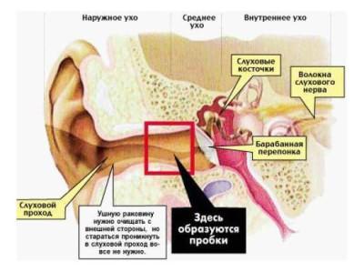 Наружный отит или воспаление наружного уха. Симптомы