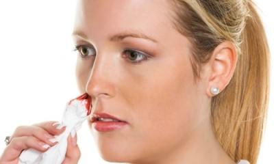 Появление крови при насморке