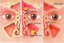 Осложнение гнойного синусита