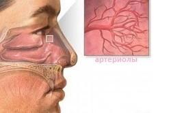 Разрыв капилляров - причина появления кровотечений