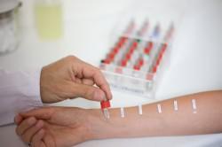Проведение кожных проб для диагностики