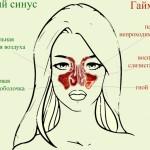 воспалительный процесс гайморита