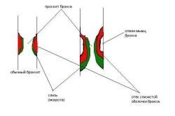 Схема обструктивного бронхита