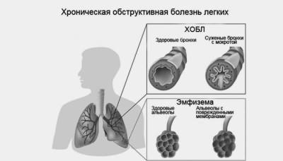 Схематическое изображение ХОБЛ и эмфиземы