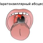 паратонзиллит