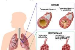 Механизм развития хронического бронхита