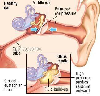 отит среднего уха лечение