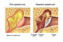 Симптомы отита