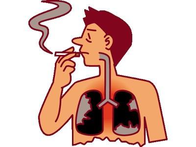 Причина воспаления легких: курение