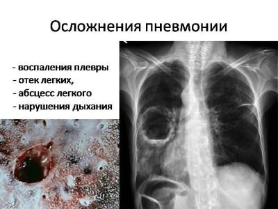 Пневмония: симптомы, признаки воспаления легких