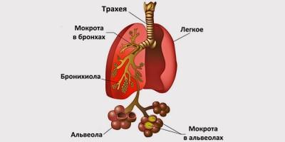 Симптомы бронхопневмонии