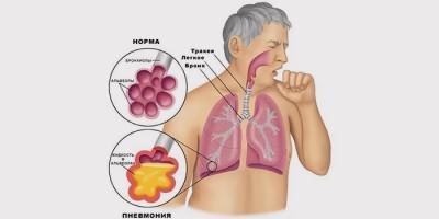 Признаки хронической пневмонии