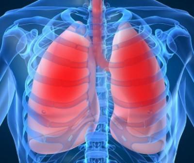 Пневмония в 21 веке