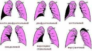 Плеврит симптомы лечение
