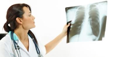 затмение легкого на рентгене
