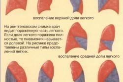 Виды воспаления легких