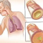 бронхт, как осложнение при гриппе