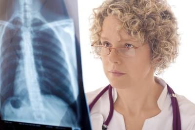 Внебольничная пневмония история болезни