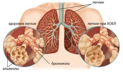 Симптомы обструктивного бронхита medportal.su