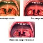 Разновидности ангин