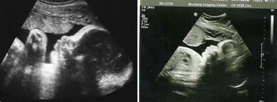 УЗИ живота на 34 неделе беременности