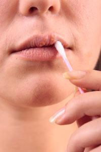 простуда на губах лечение