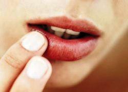простуда на губе при беременности