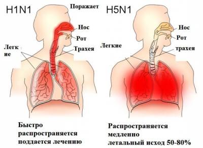 птичий грипп симптомы