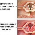 Почему возникает кашель и пропадает голос?