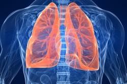 Воспаление легких - причина кашля с мокротой
