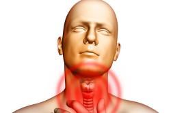Боль в горле при гриппе