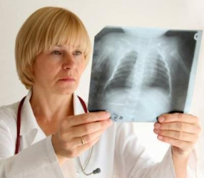 Рентген легкого при пневмонии