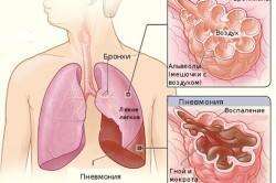 Схематическое изображение вирусной пневмонии