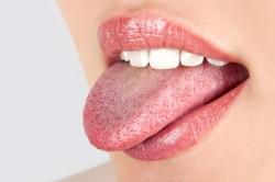 Налет на языке - симптом гриппа