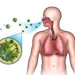 Причины, симптомы вирусного бронхита