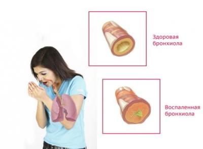 Почему затяжной кашель не проходит долго