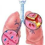 Почему возникает кашель после гриппа