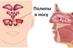 Полипы в носу – причина заложенности носа