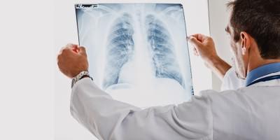 Врач исследует рентген