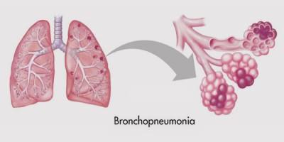 Бронхиальное воспаление легких