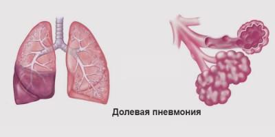 Долевое воспаление легких