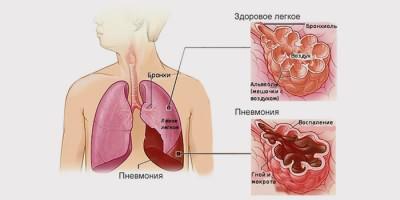 Что такое воспаление легких