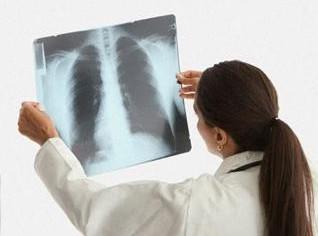 Изменения на рентгенограмме
