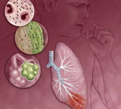 Какие симптомы при воспалении легких
