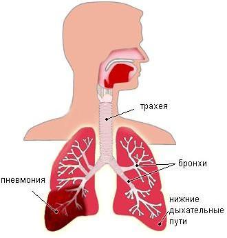 Пневмония у взрослого человека